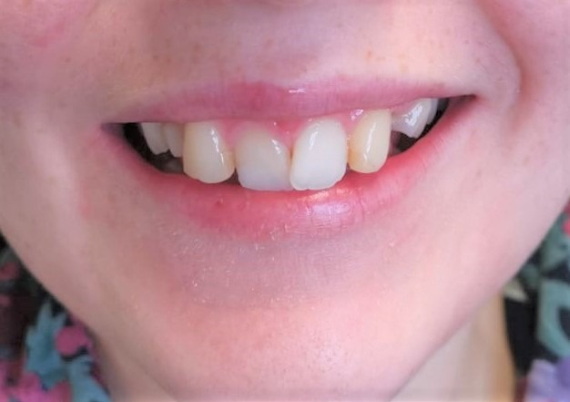 Before dental treatment at Ipswich Dental Surgery