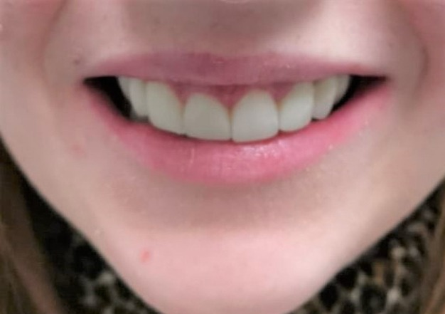 After dental treatment at Ipswich Dental Surgery