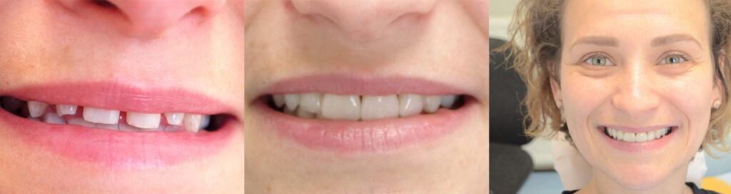 Dental smile makeover at Ipswich Dental Surgery